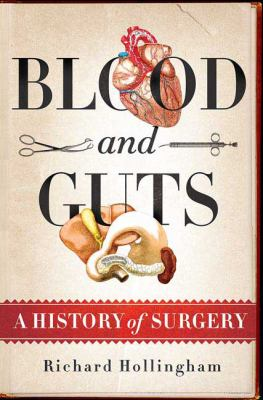 Blood and guts : a history of surgery